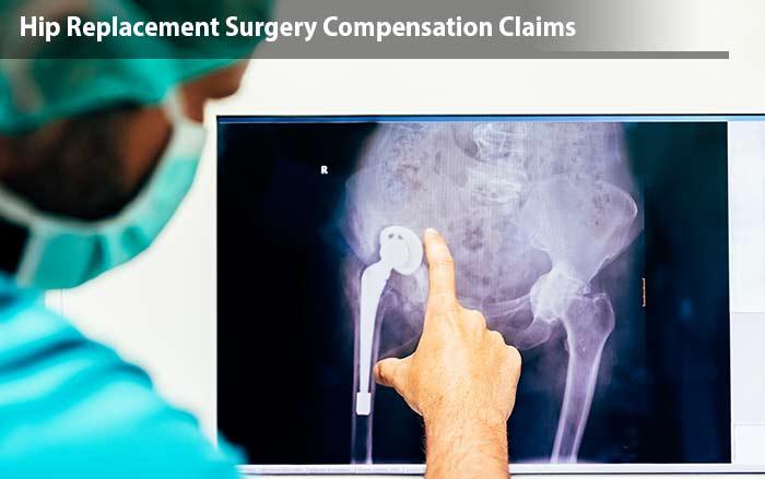 Hip Surgery negligence