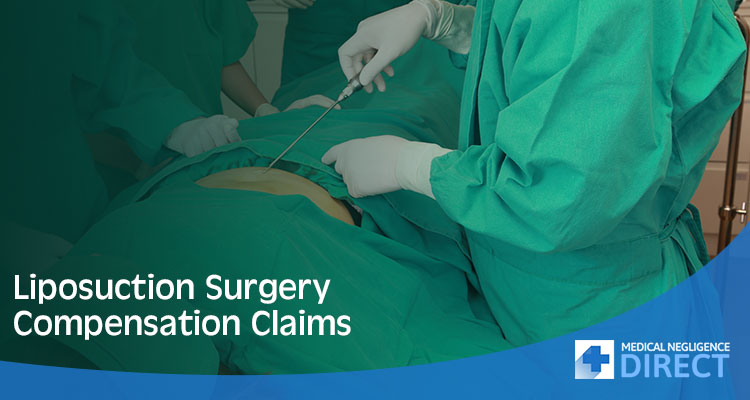 Liposuction Surgery Claims